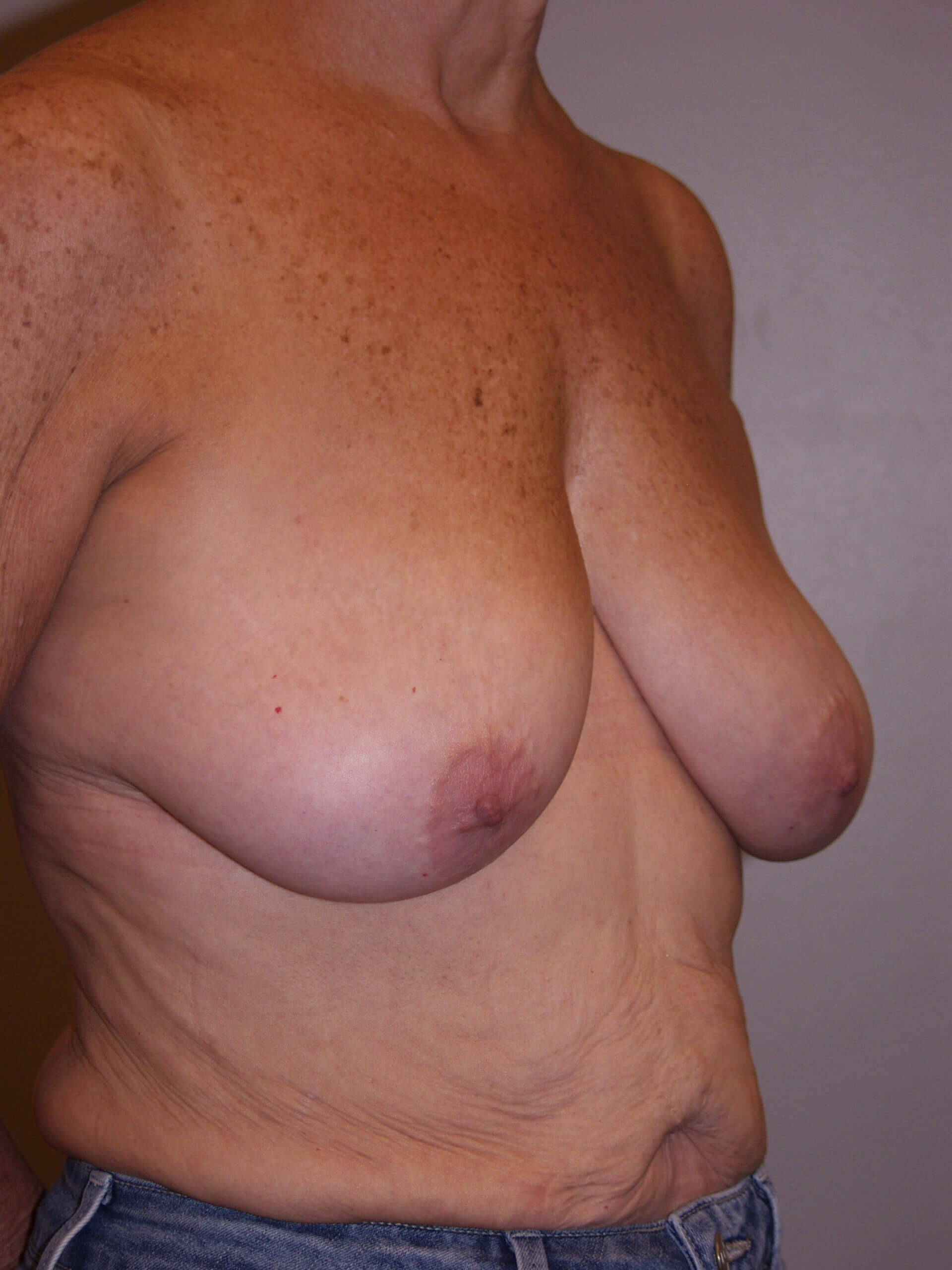 Mastopexy Before