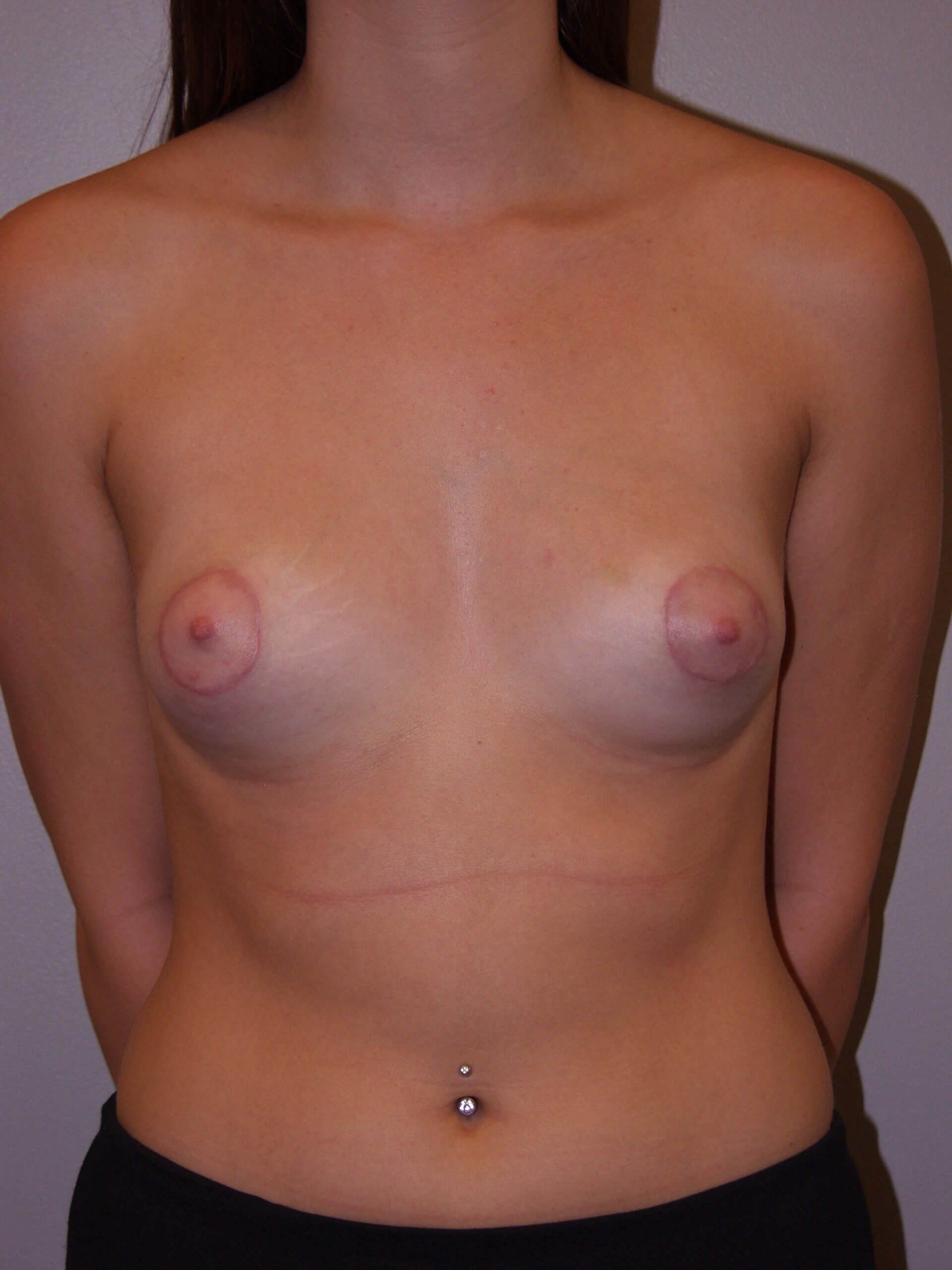 Breast Lift - Tubular Breast After
