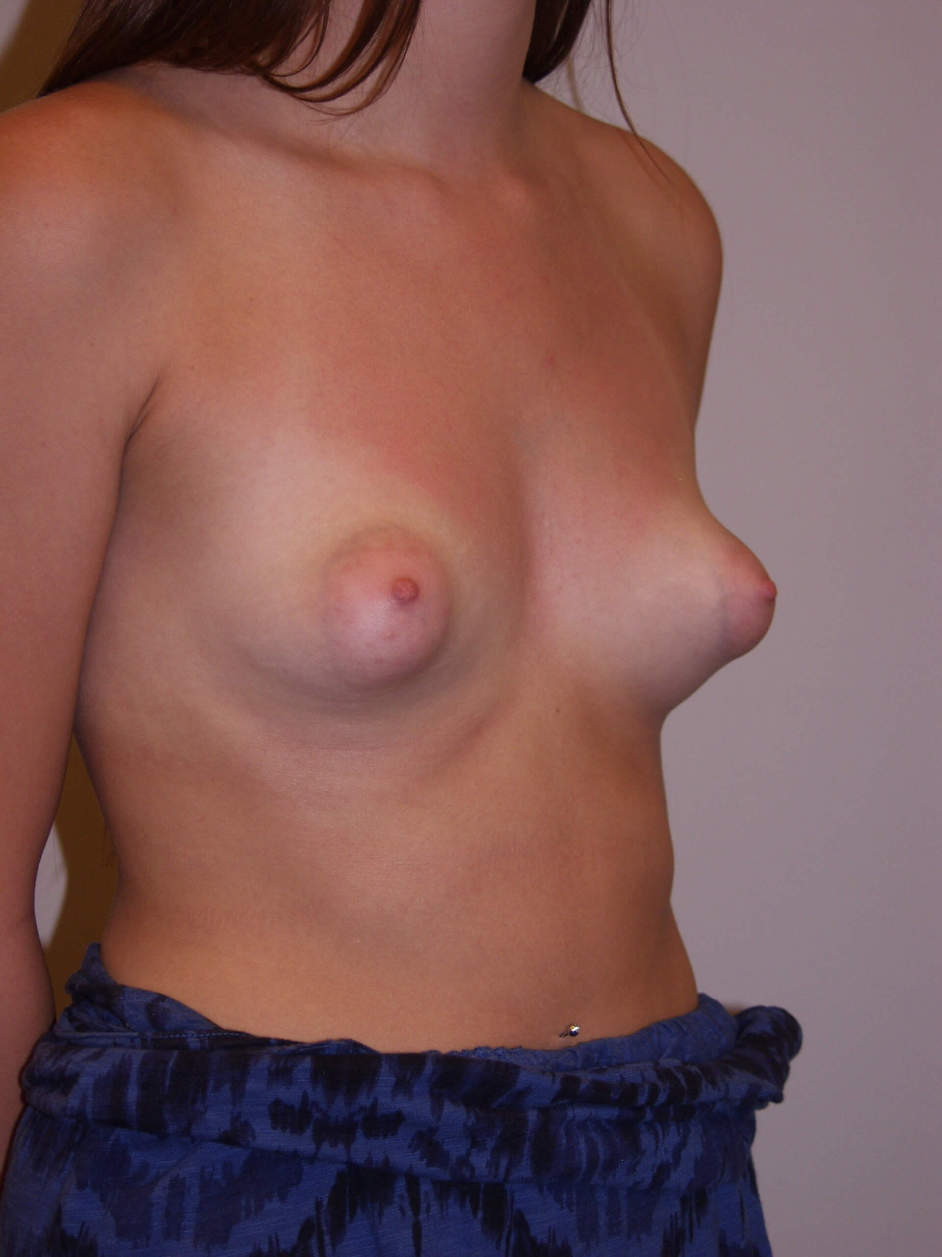 Breast Lift - Tubular Breast Before