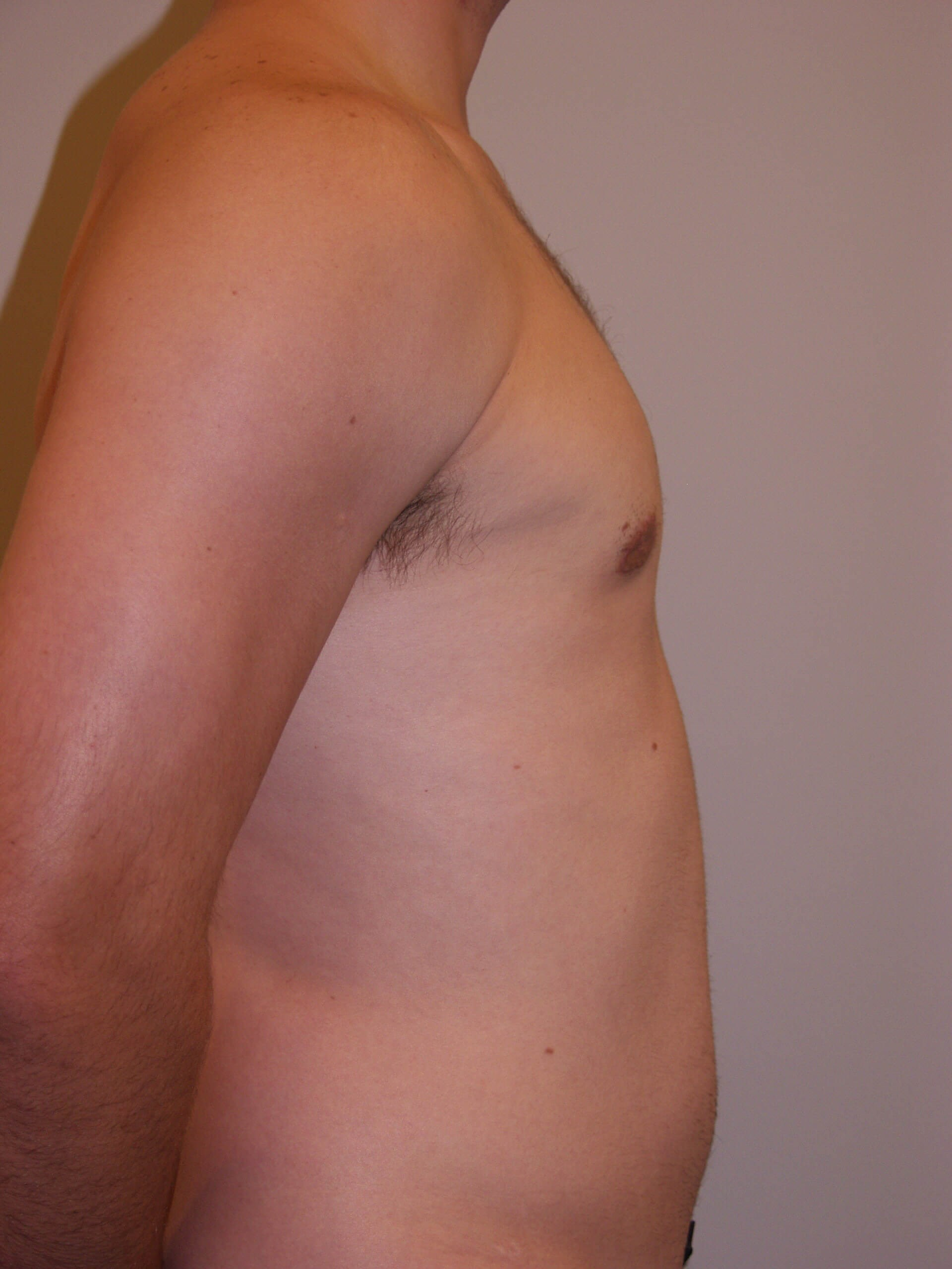Gynecomastia Reduction After