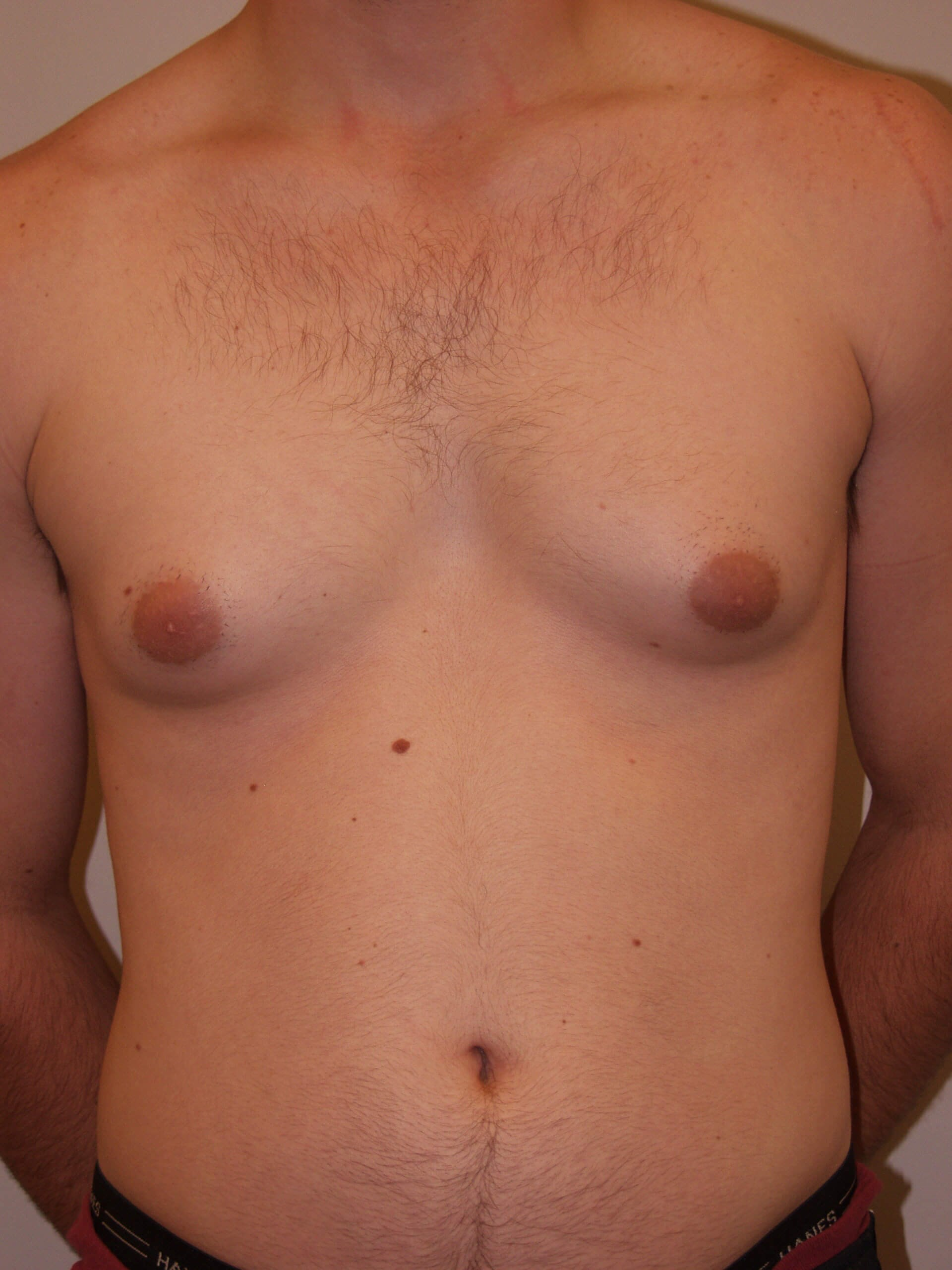 Gynecomastia Reduction Before
