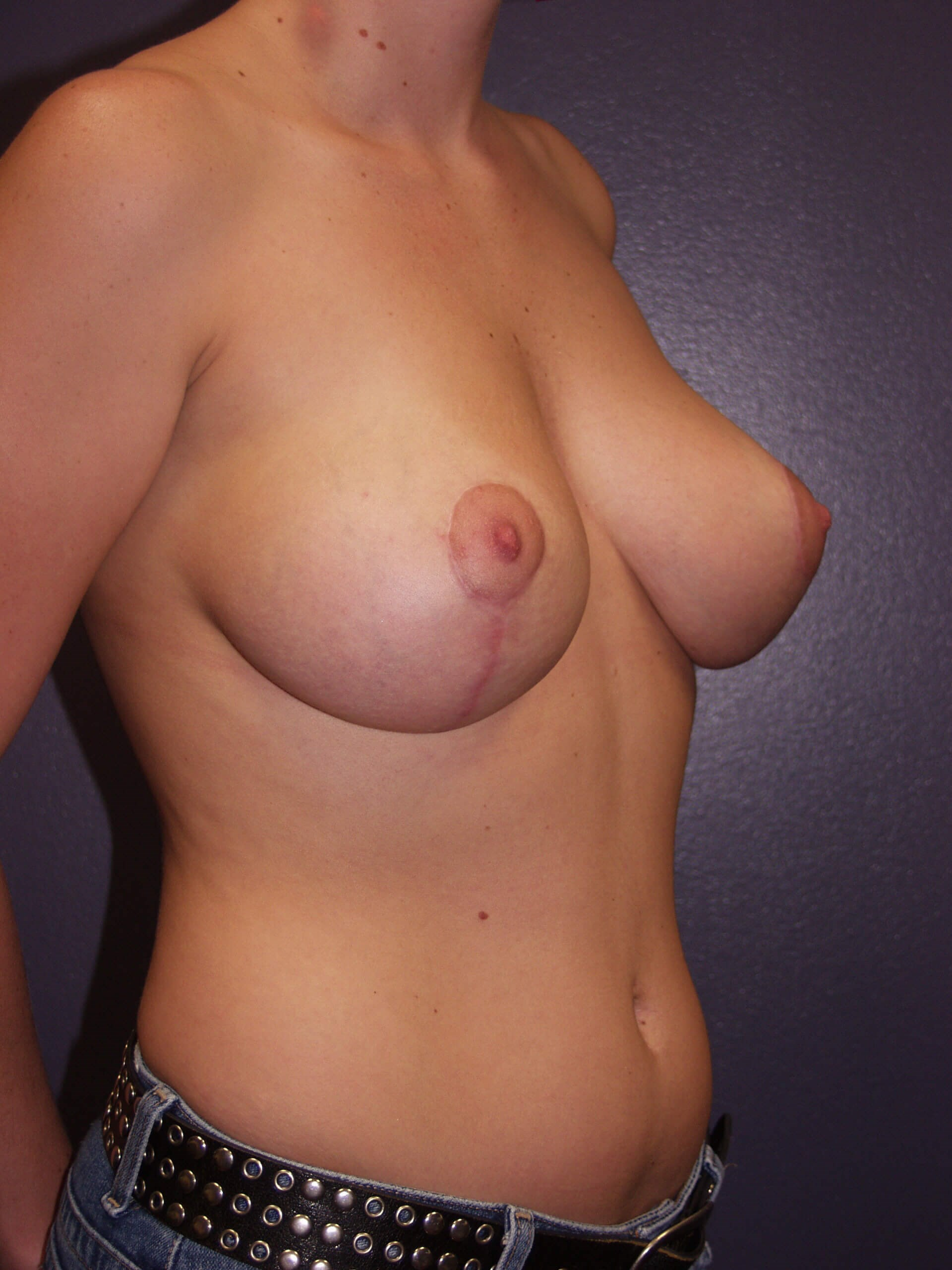 Vertical Mastopexy After