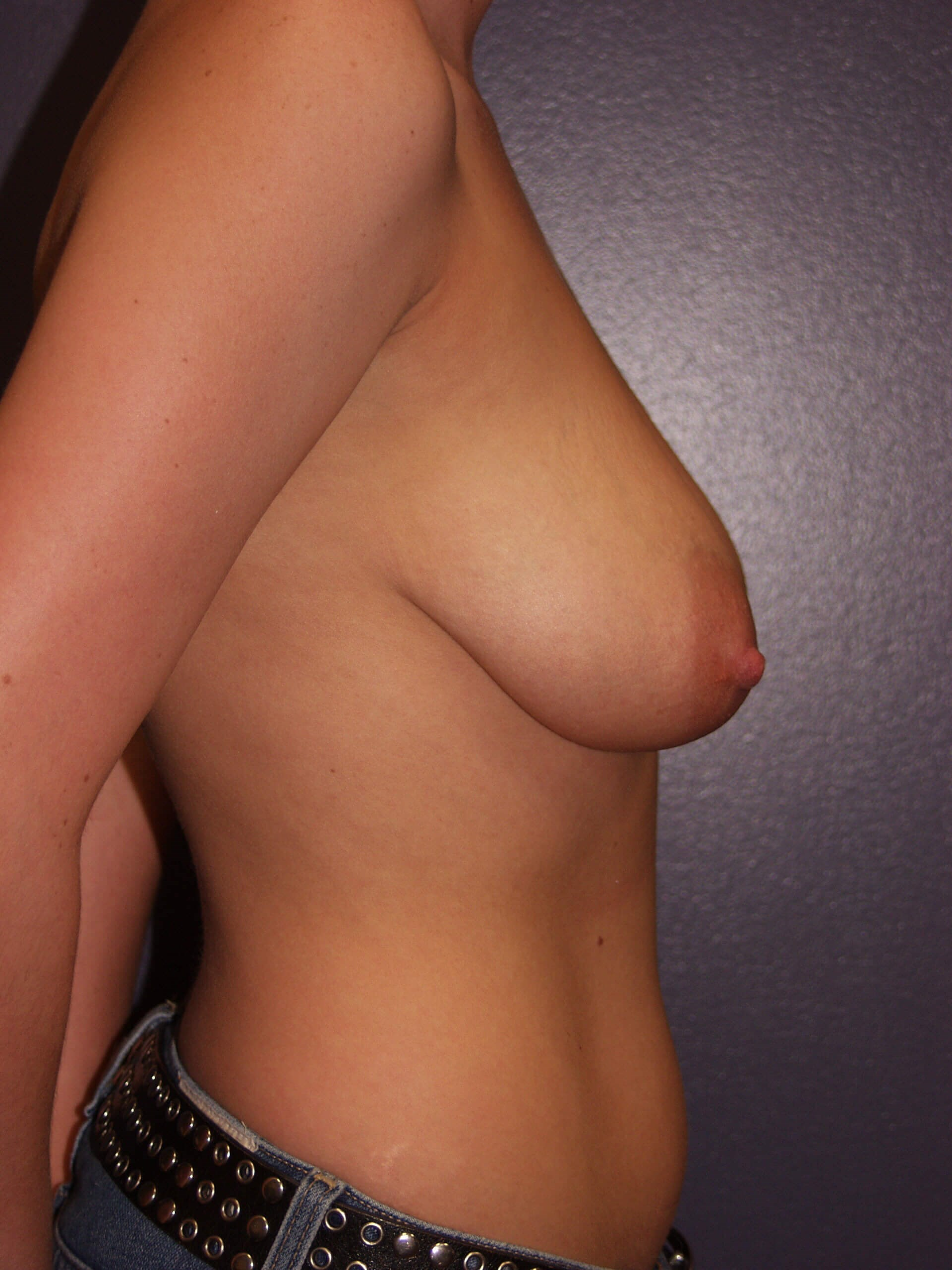 Vertical Mastopexy Before