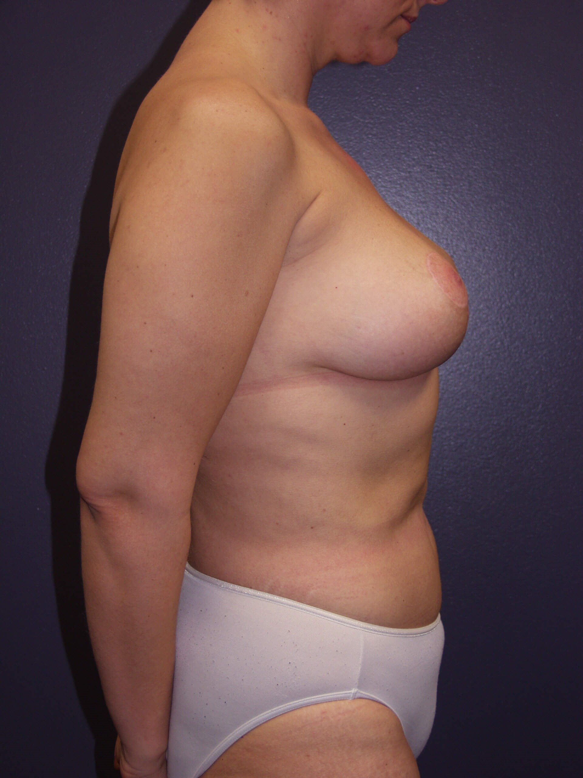Mastopexy and Liposuction After