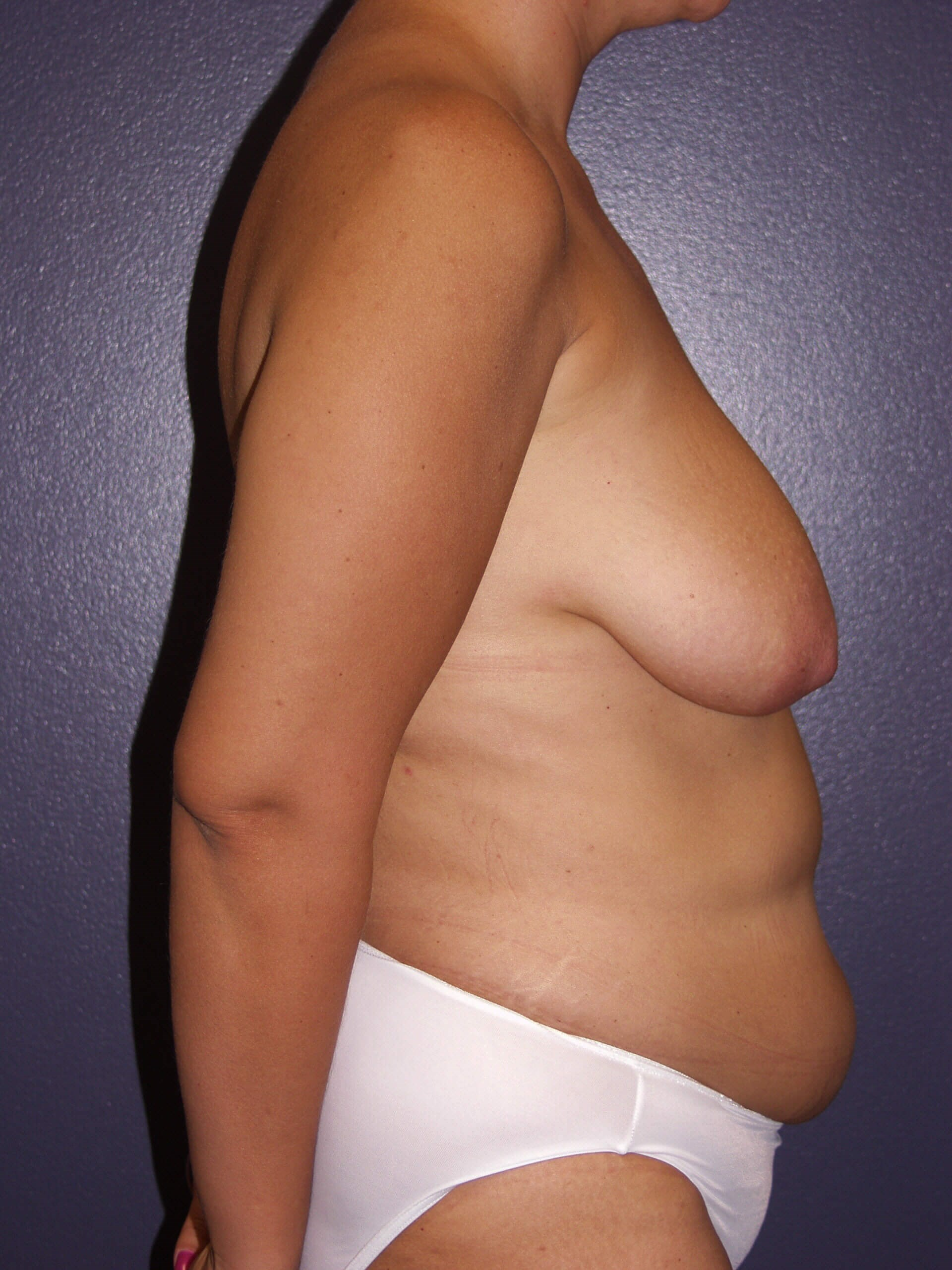 Mastopexy and Liposuction Before