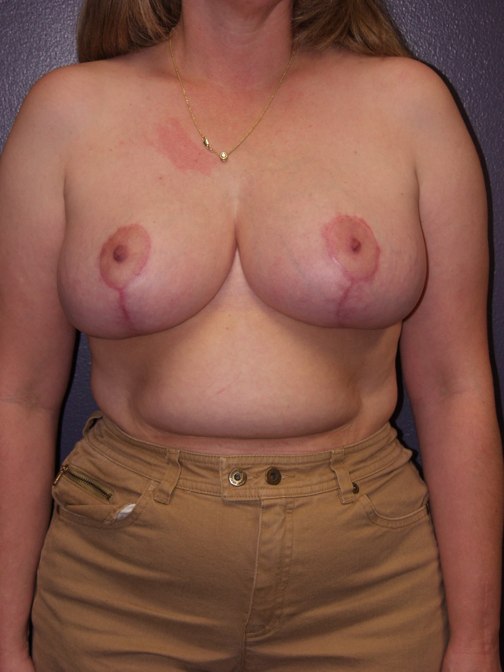 Breast Reduction 2 months post op