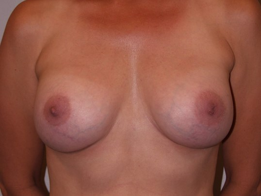 Exchange with capsulectomy After