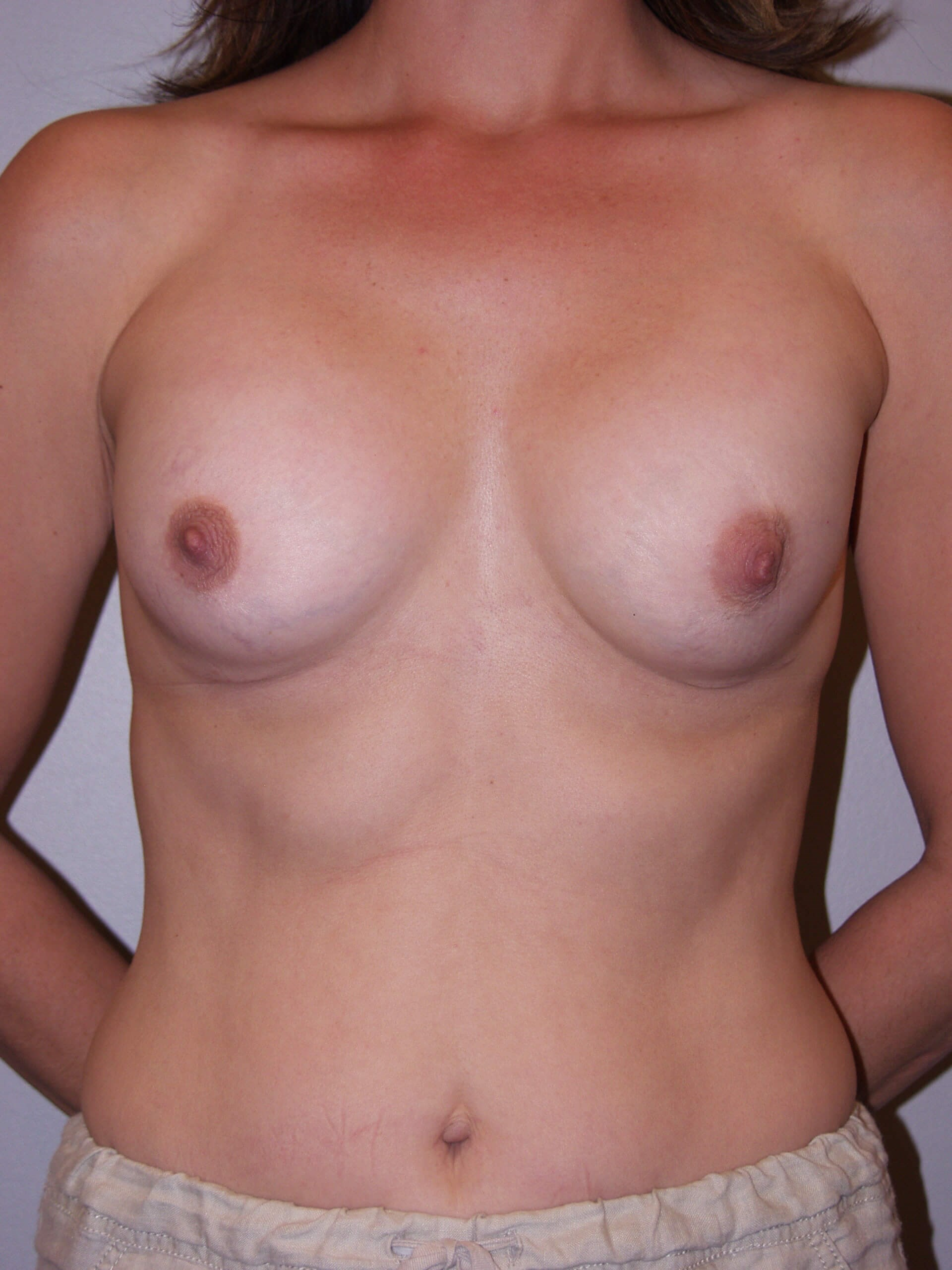 Exchange with capsulectomy Before
