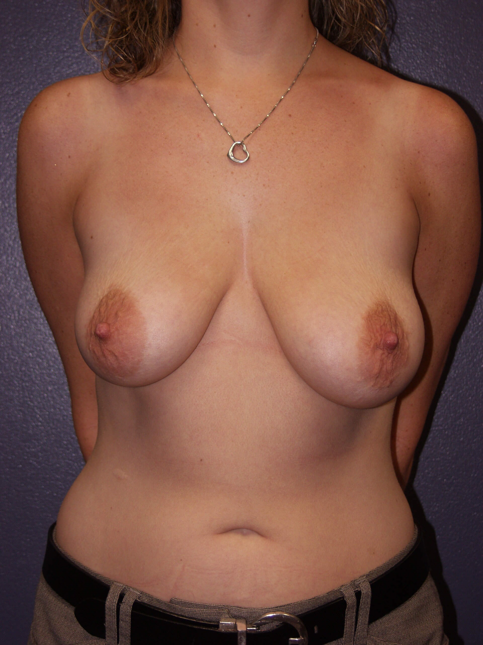 Breast lift without implants Before