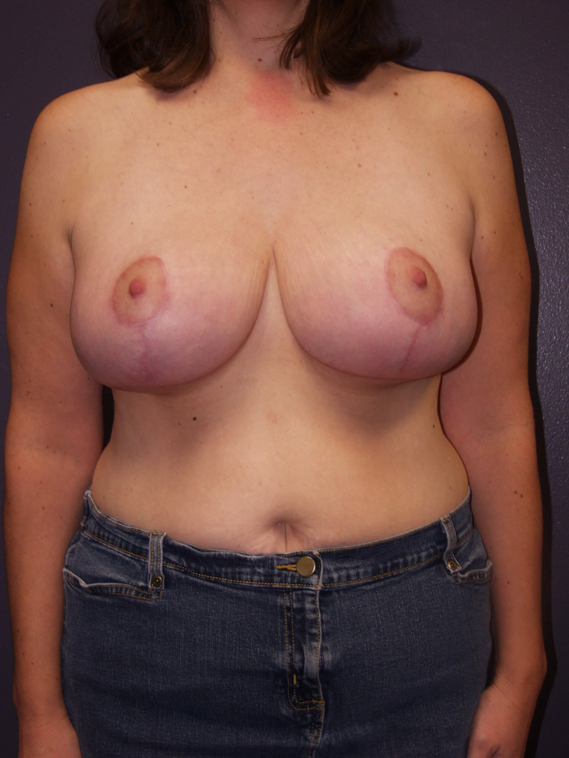Breast augmentation with full After