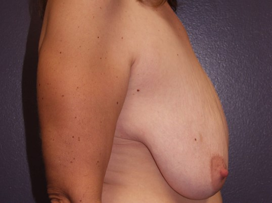 Breast augmentation with full Before