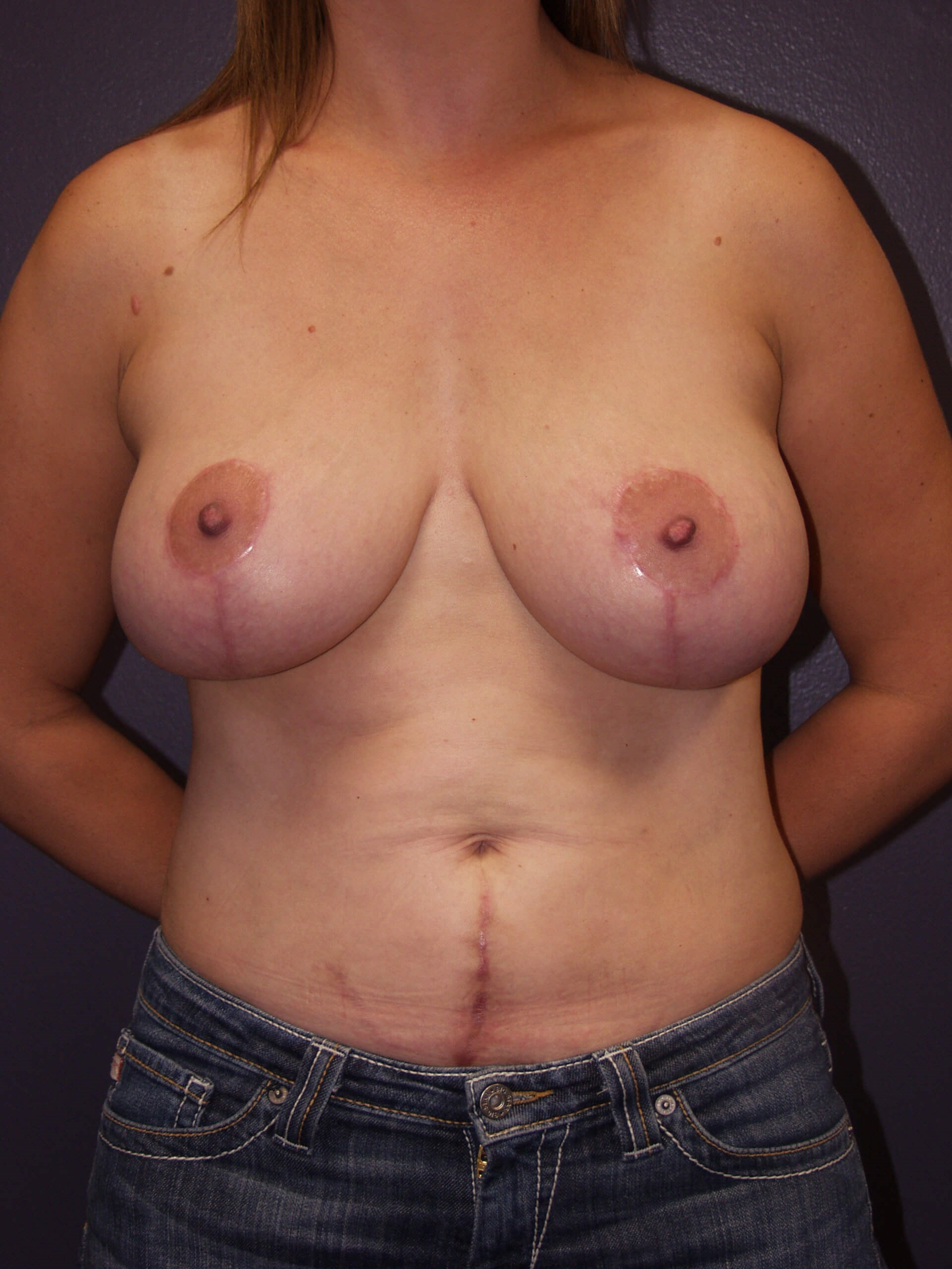 Breast augmentation with lift After