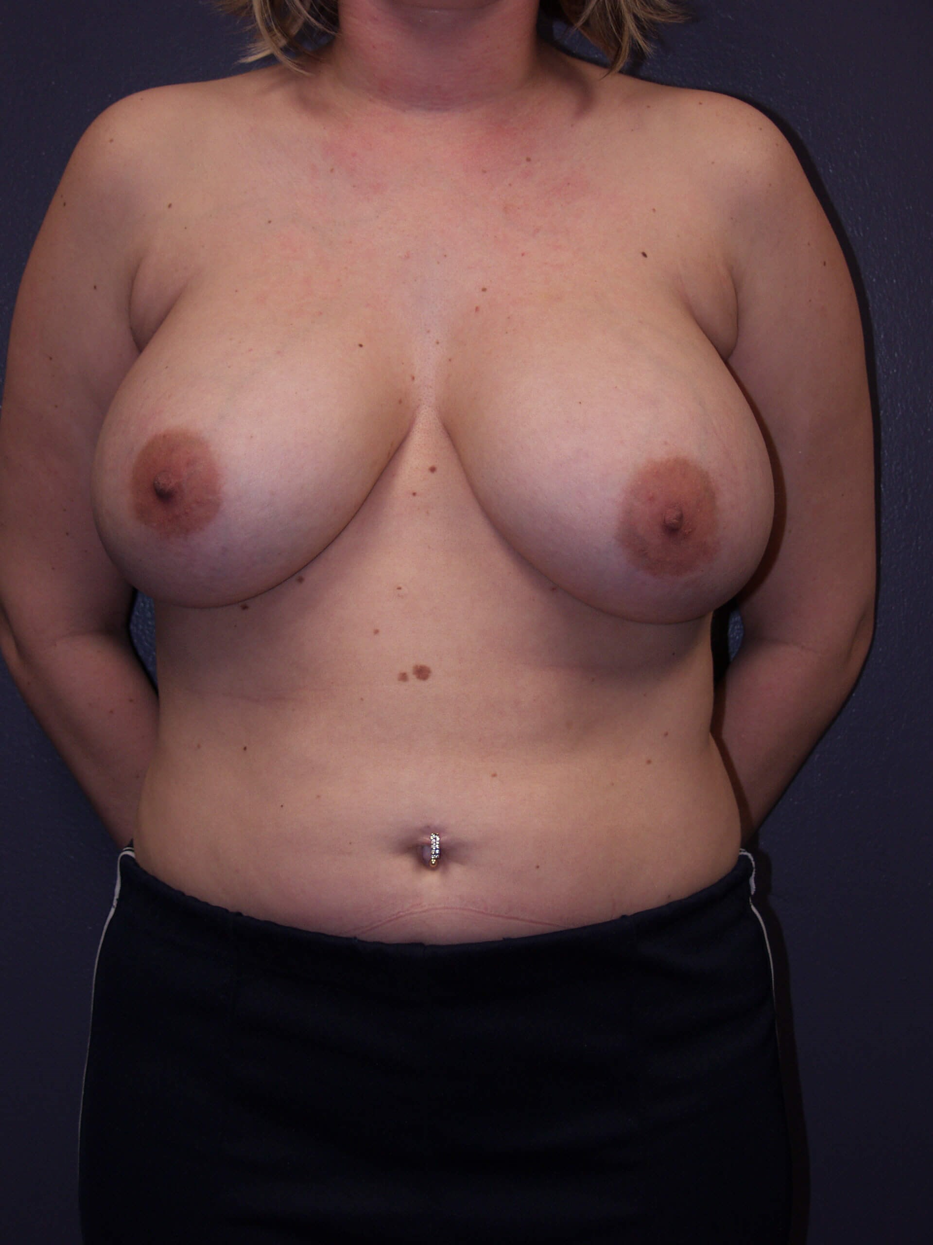 Exchange and Breast Lift Before