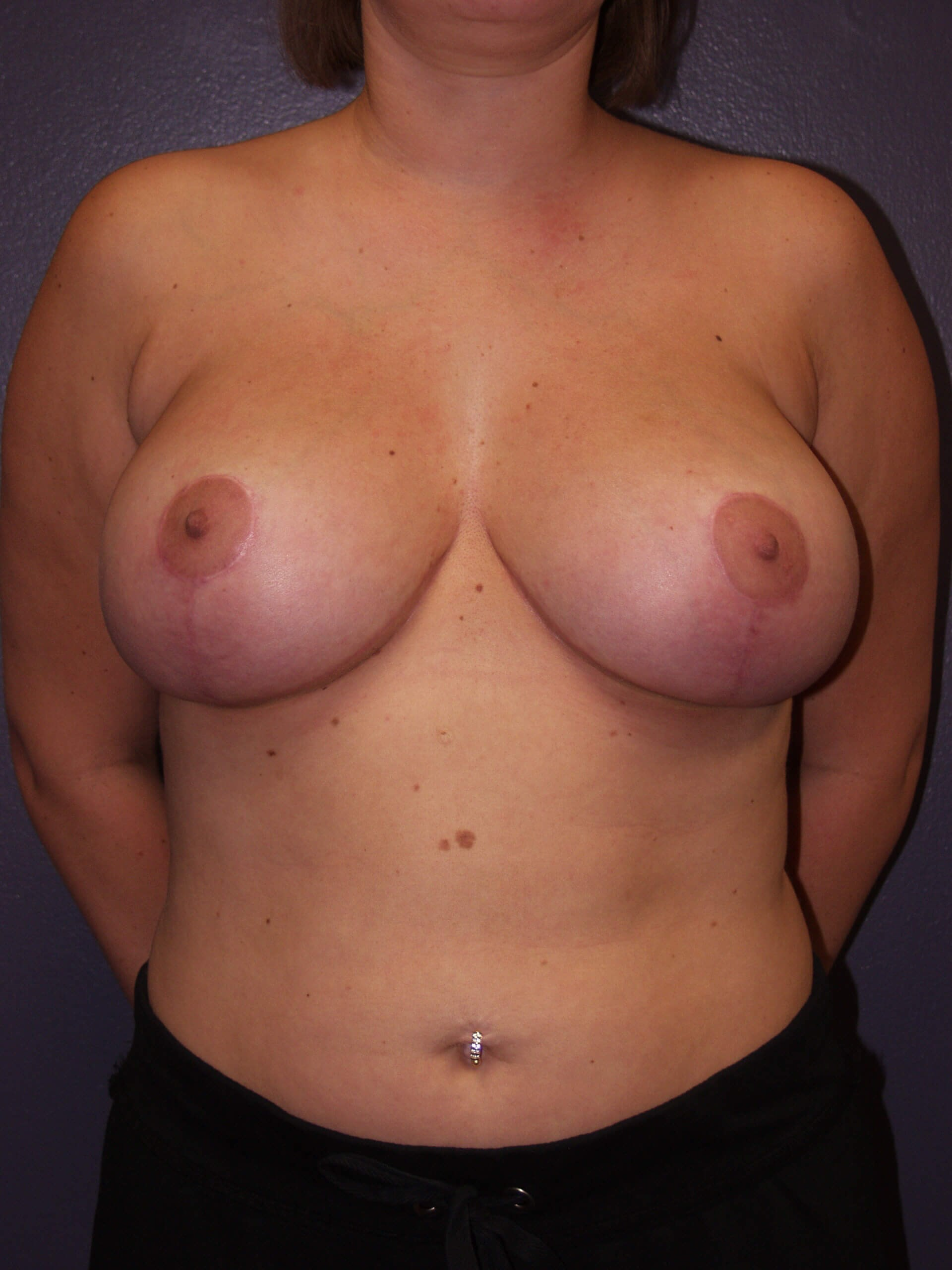 Exchange and Breast Lift After