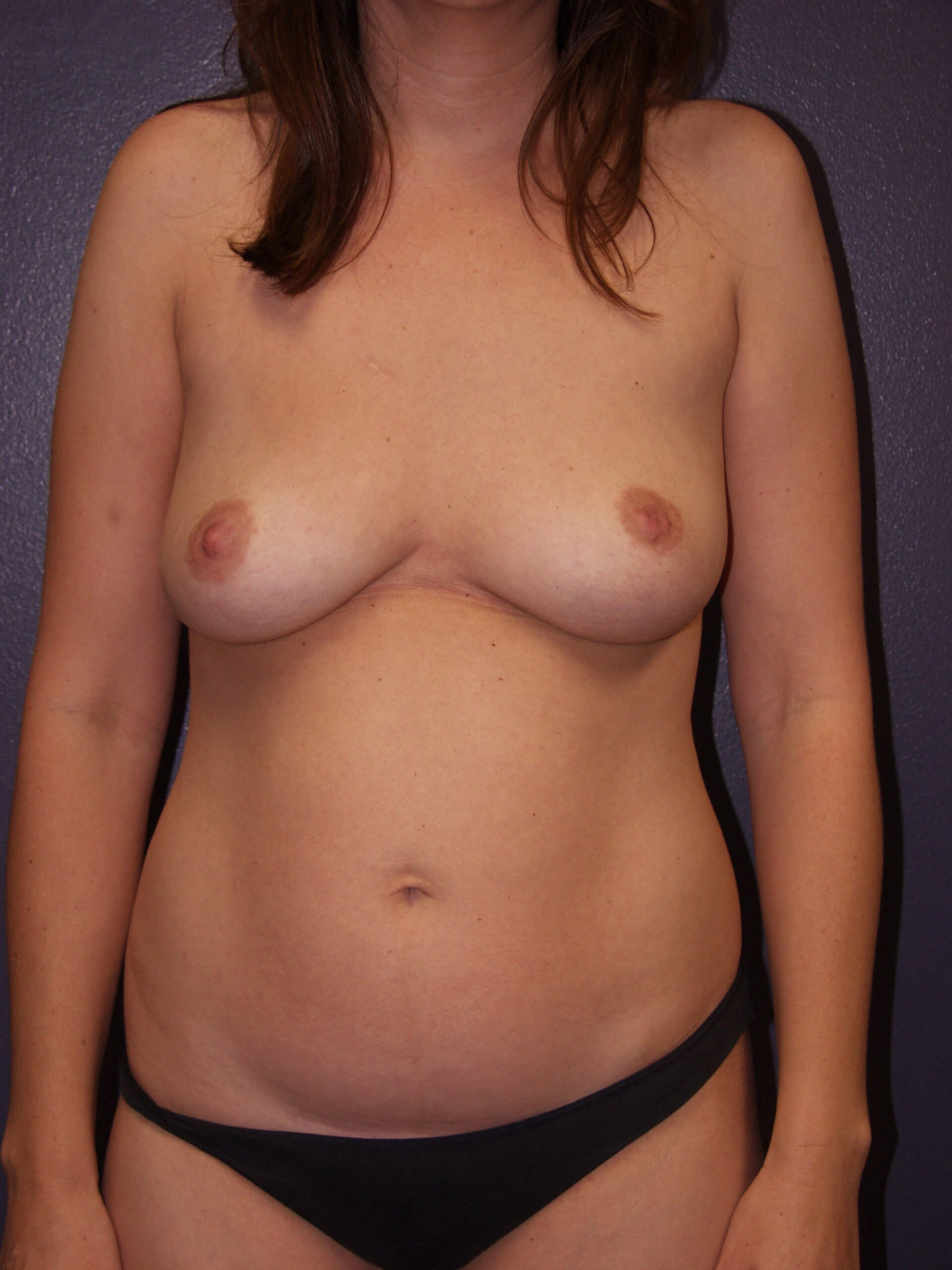 Liposuction of abdomen Before