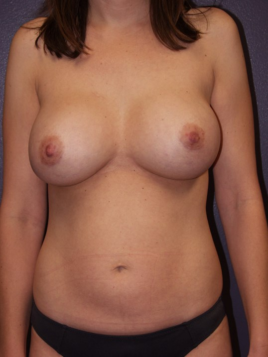 Liposuction of abdomen After