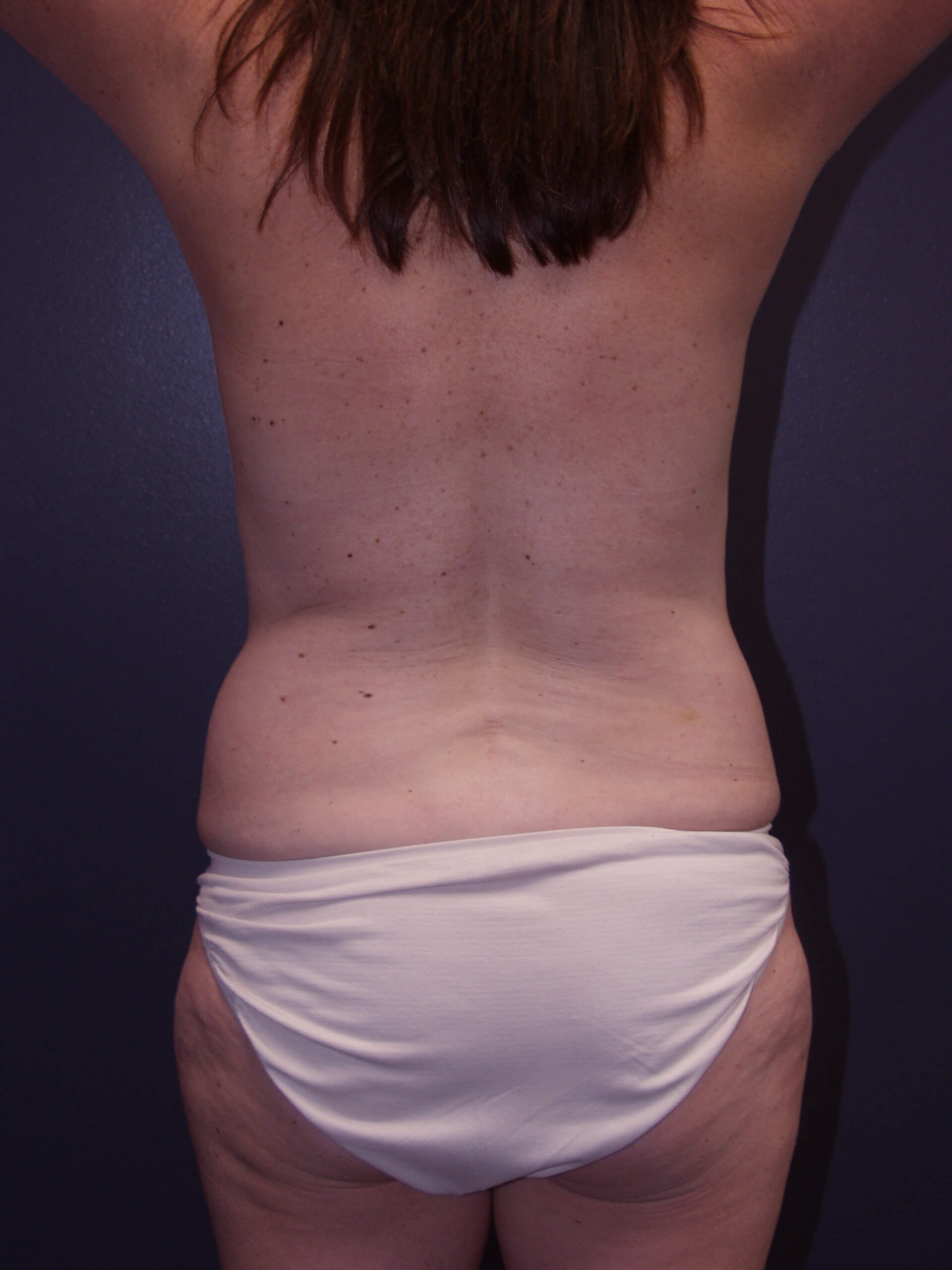 Liposuction of back and flanks Before