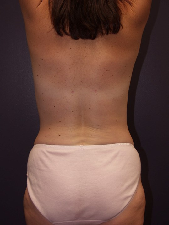 Liposuction of back and flanks After