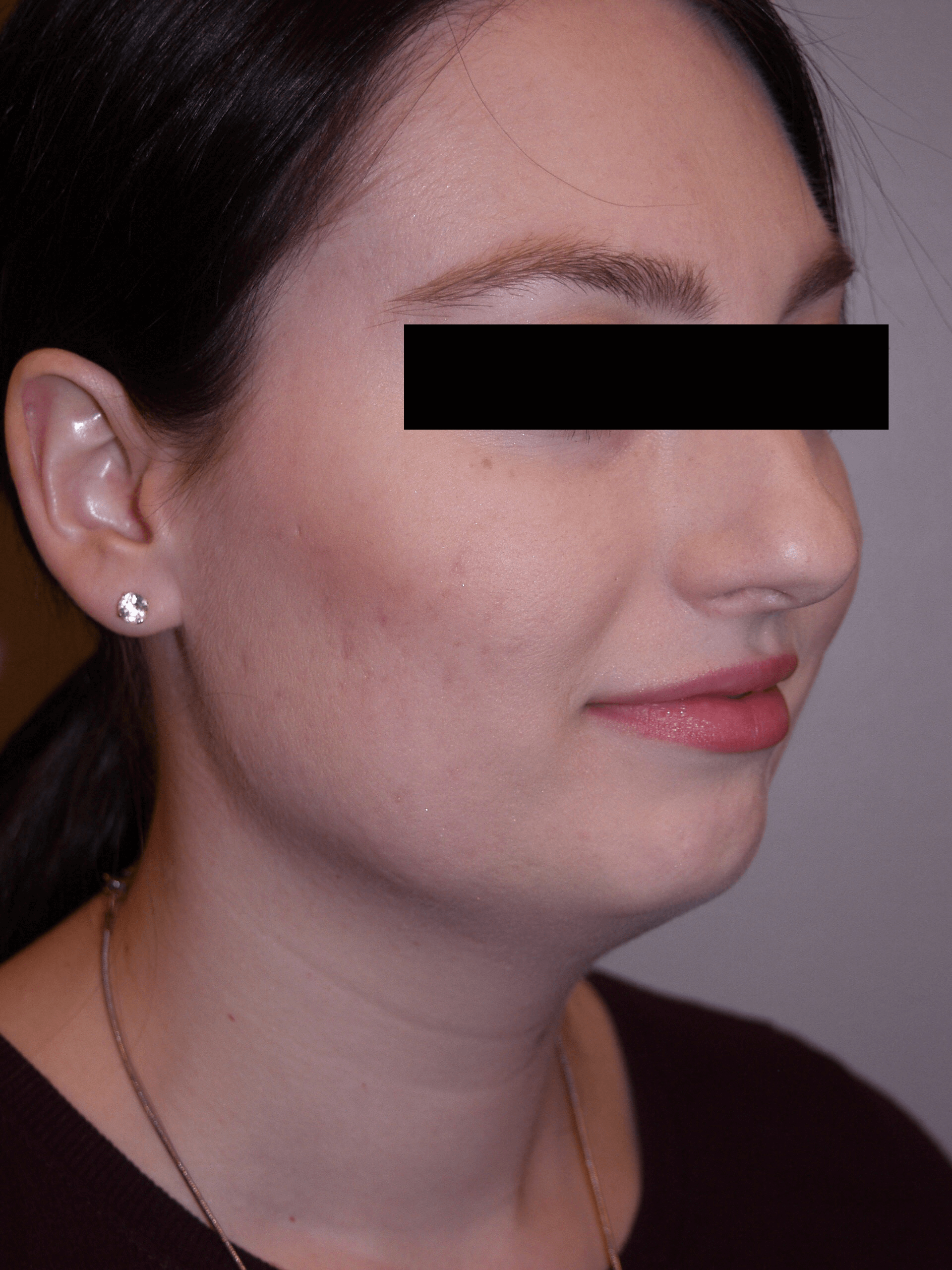 Liposuction of neck Before