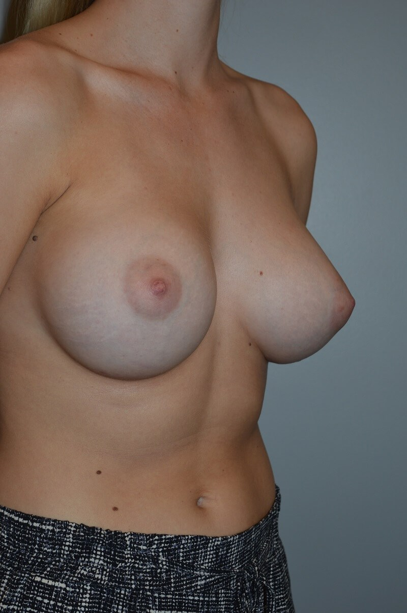 Breast Augmentation After