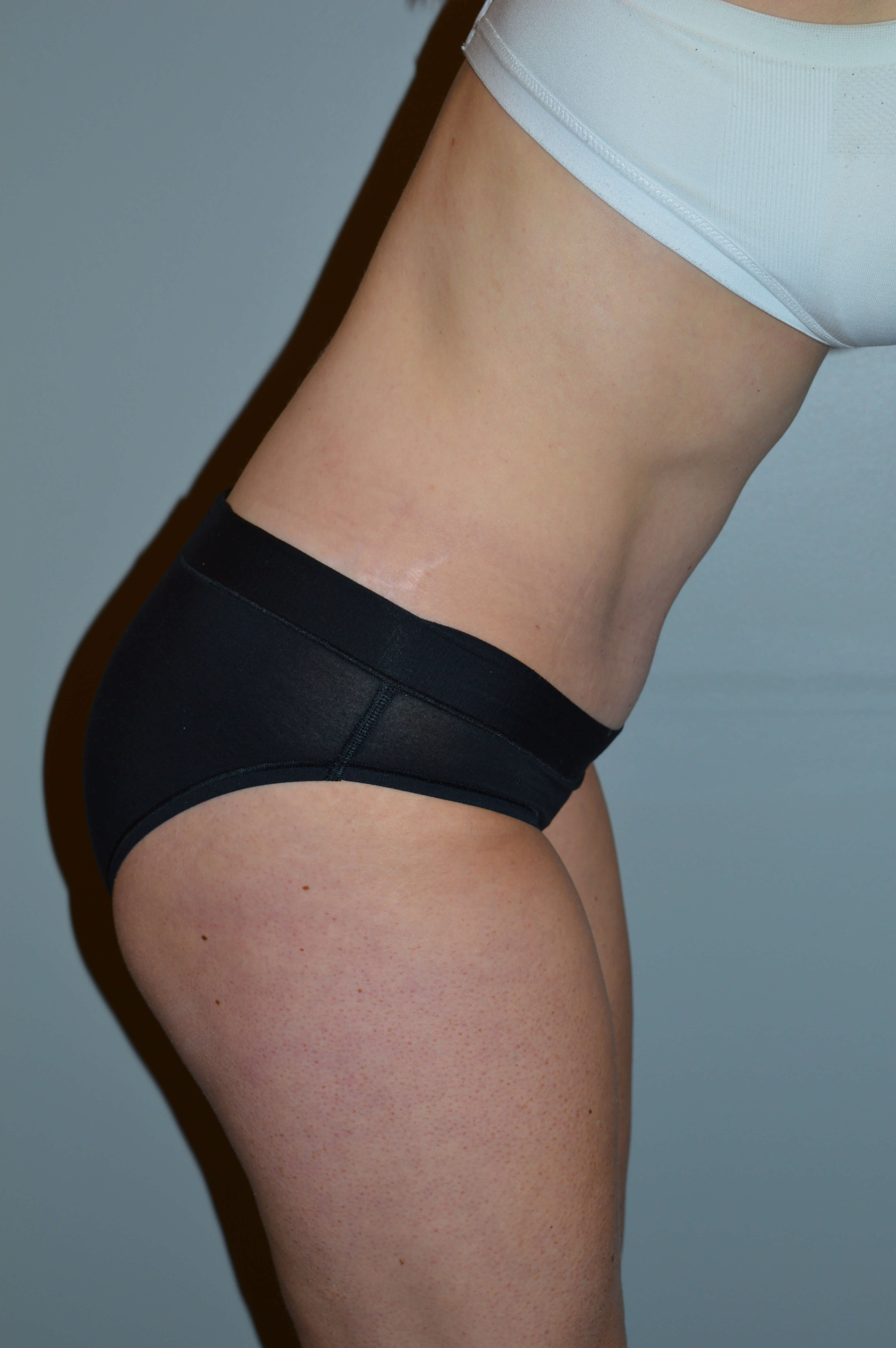 Tummy Tuck, Lipo of Flanks After