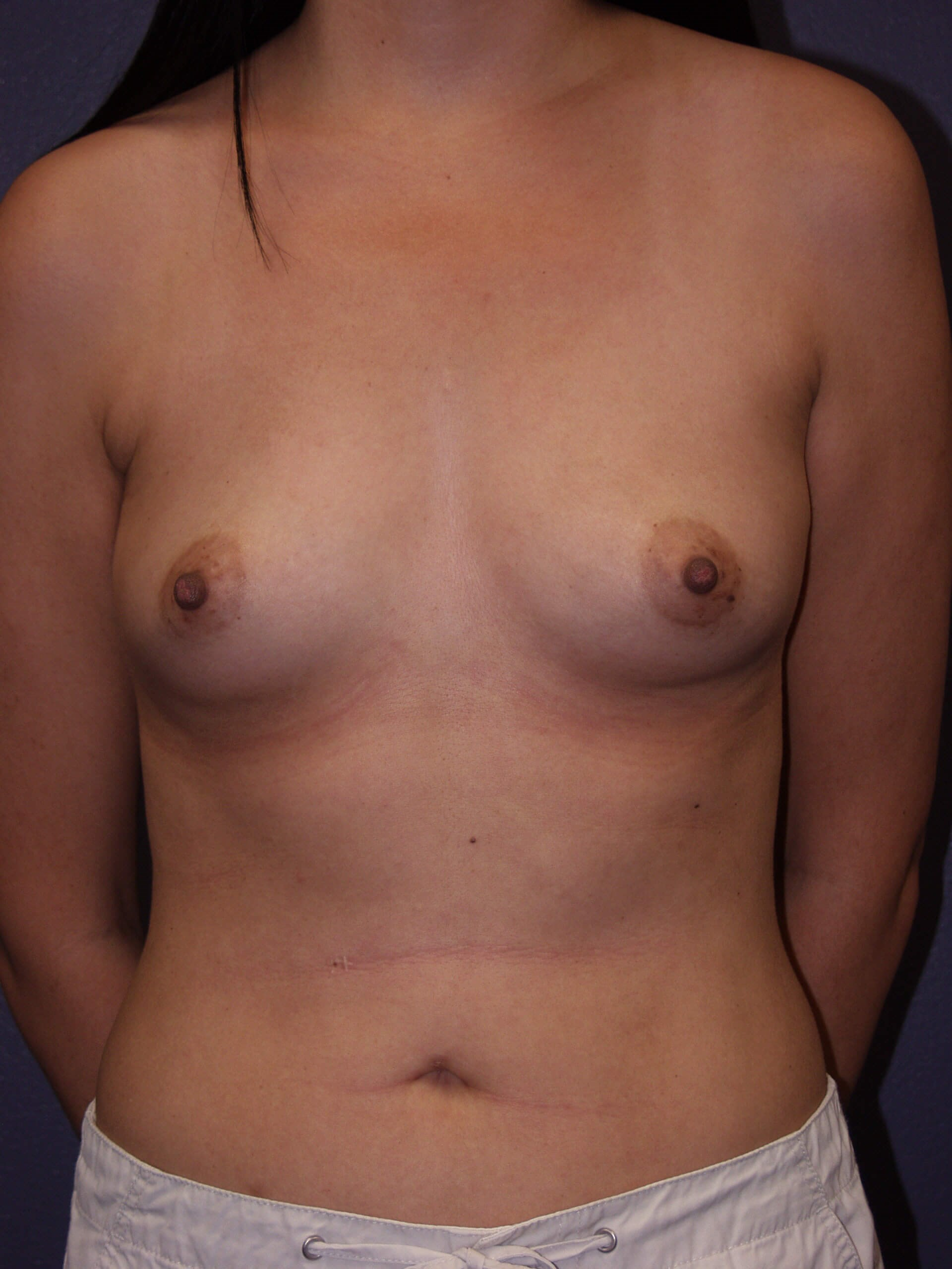 Breast Augmentation Before
